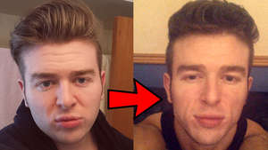 Mewing Log Facial Transformation After Fat Loss